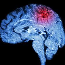 درمان از دست دادن گفتار بعد از سکته مغزی در کرج