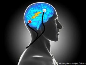 تأثیر tdcs بر بهبود اختلالات یادگیری